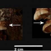Neandertaler machen SOLO-Prophylaxe